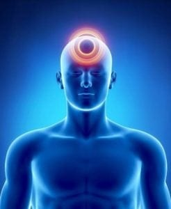 Location of Headache
