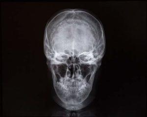 Scan of skull