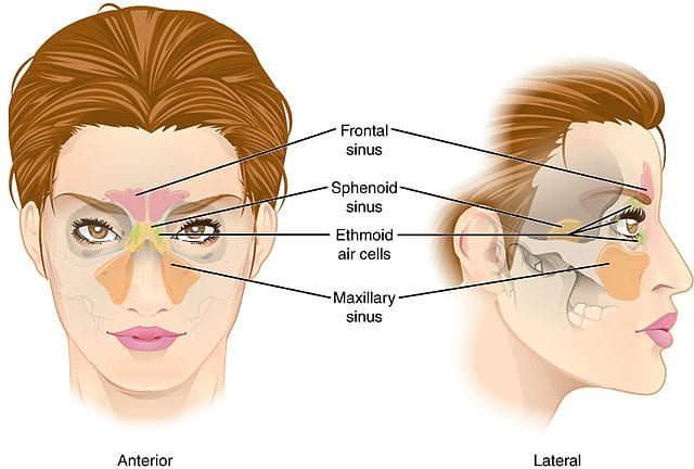 Sinus Headache Pain and How to Treat It