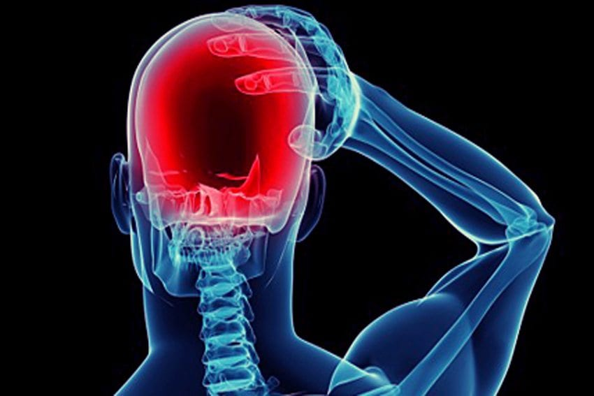 What Are the Common Concussion Headache Locations