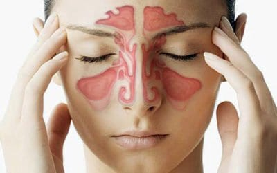 Sinus Headache Treatment: Some Options