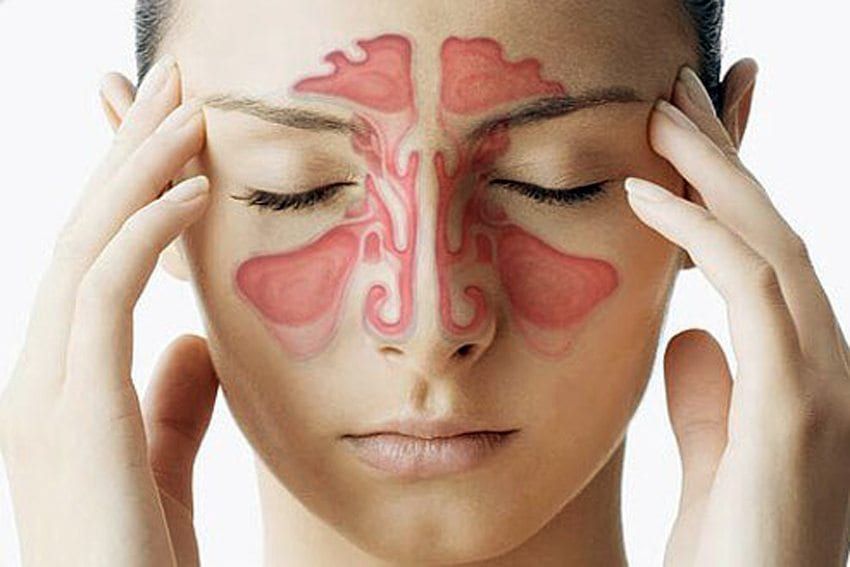 Sinus Headaches – Some Beneficial Treatment Options