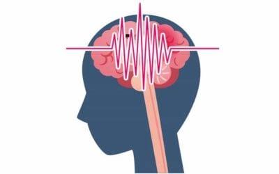 Familial Hemiplegic Migraine: Signs, Symptoms and Treatment