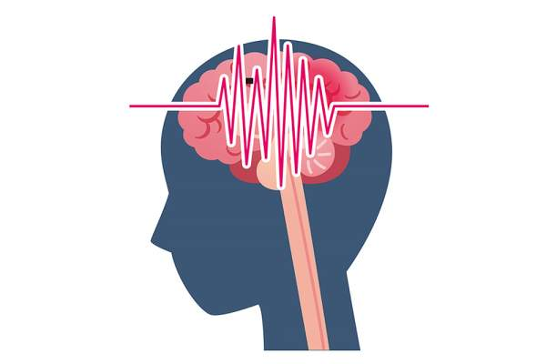 Familial Hemiplegic Migraine: Signs, Symptoms and Treatment
