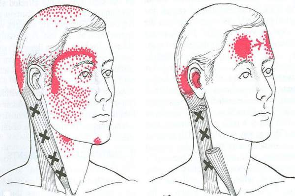 6 Headache Locations and Their Causes