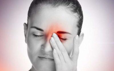 Ocular Migraine Stroke: A Brief Review