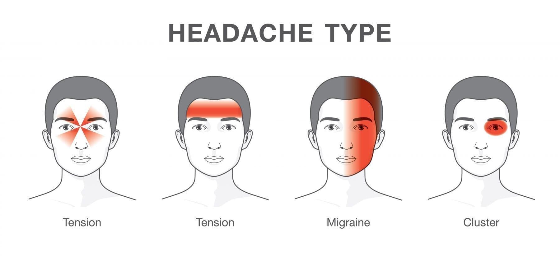 types of headaches illustration